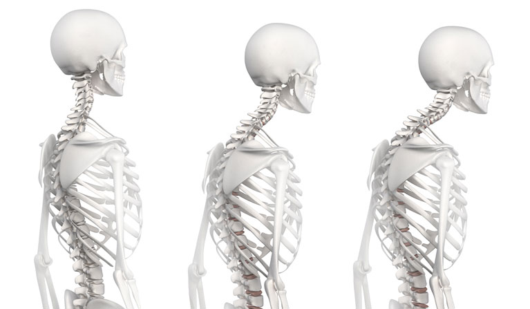 As we age, most of us start adopting a Kyphotic posture.