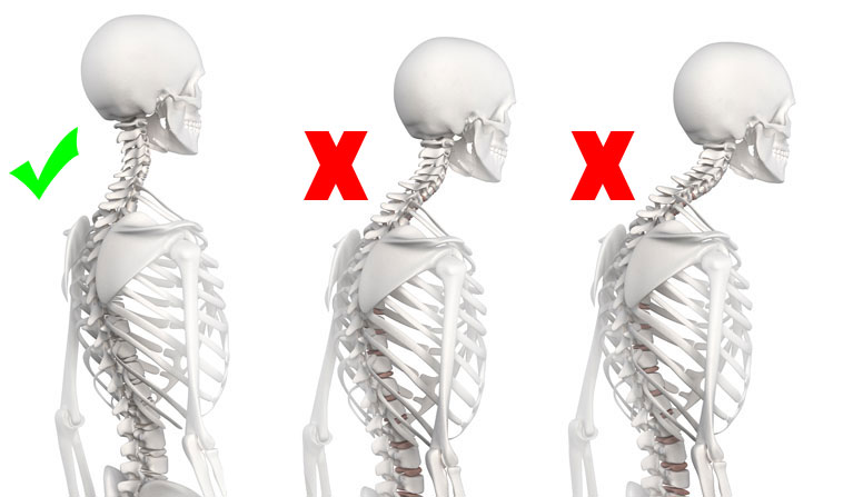 Fitness will help you prevent adopting a  bad posture.